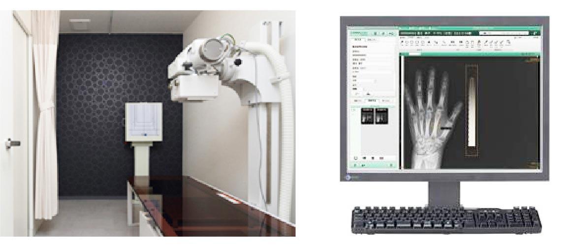 X線装置(レントゲン)