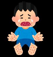 子どもの発疹が出る主な病気